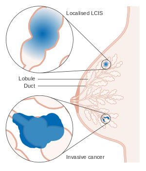 diagram_showing_lobular_carcinoma_in_situ_lcis_cruk_166-svg